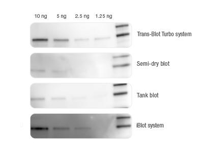 BIO-RAD Trans-Blot®Turbo<strong><strong><strong>美国伯乐全能型蛋白转印系统1704150</strong></strong></strong>