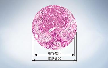 Olympus奥林巴斯显微镜